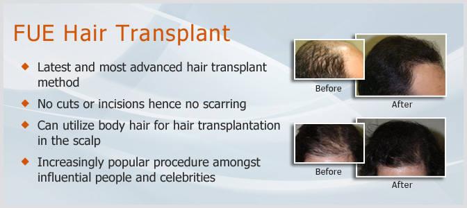 Dev Hair Transplant Clinic Ahmedabad