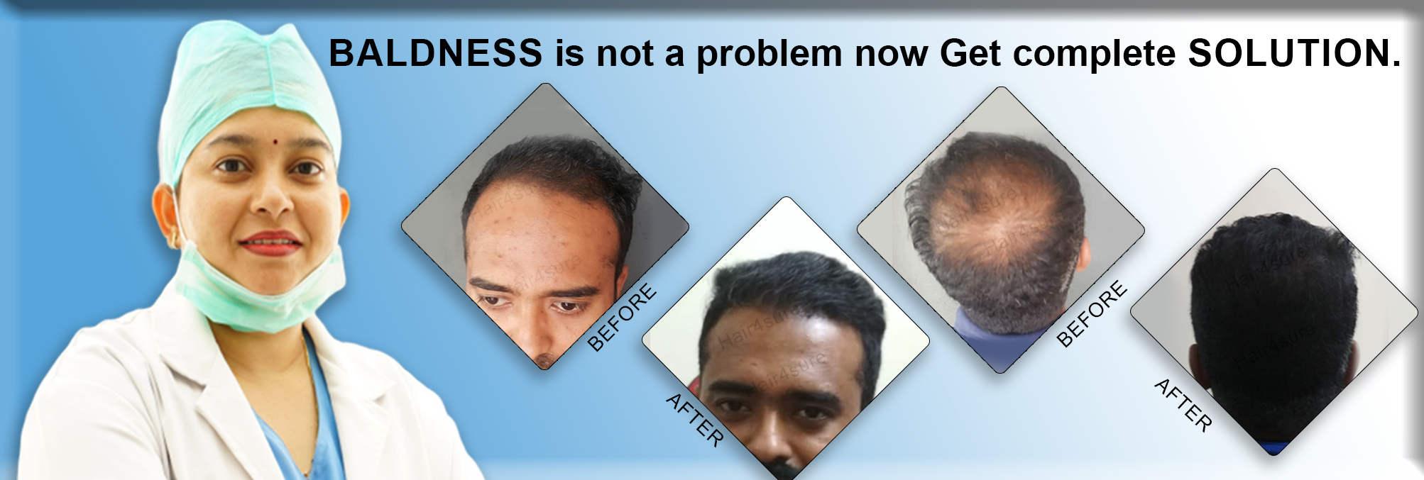 Hair4sure Clinic