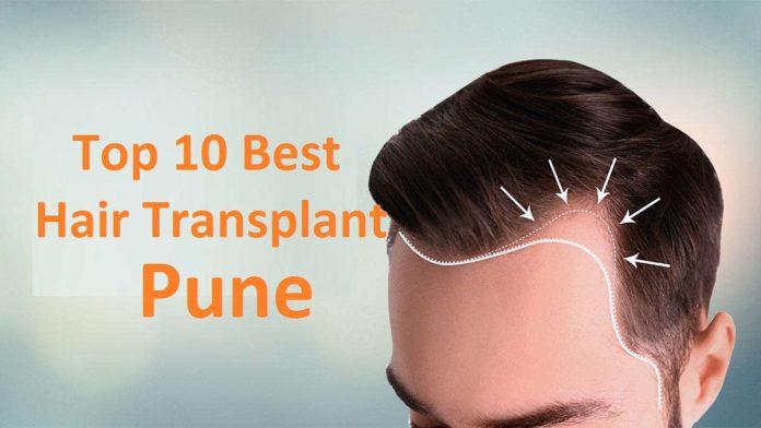 Top 10 Best Hair Transplant in Pune